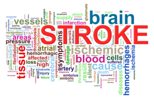 stroke unit brain center ischemic hemorrhagic tPA neurology